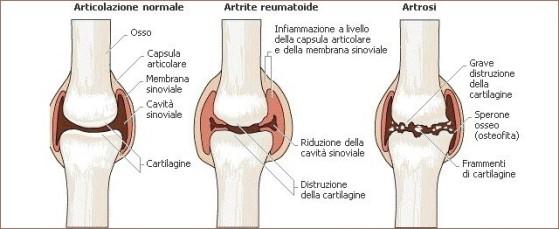 artriti