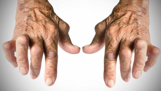 artrite 3